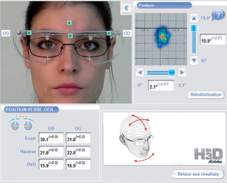 Essilor Eyecode, une technologie unique à Argentan, Optique Guillais